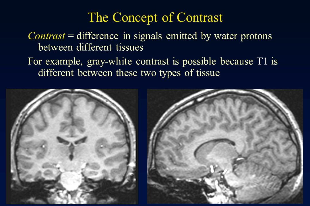 Contrast mechanism and pulse sequences ppt video online Types of contrast