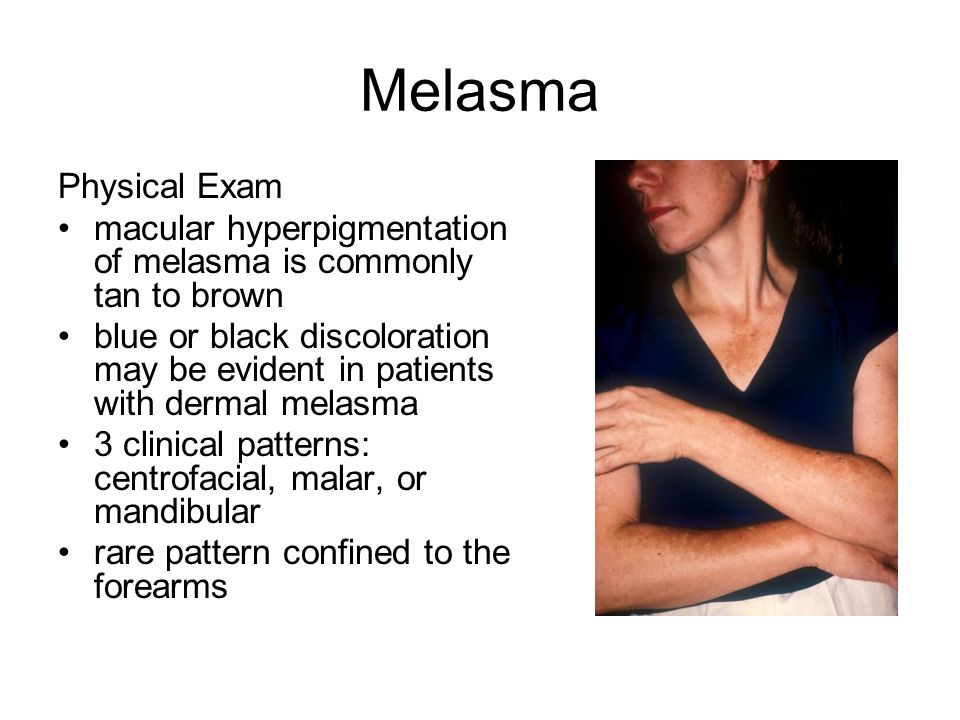melasma essay Bmc dermatology research article biomed central open access melasma and its association with different types of nevi in women: a case-control study.