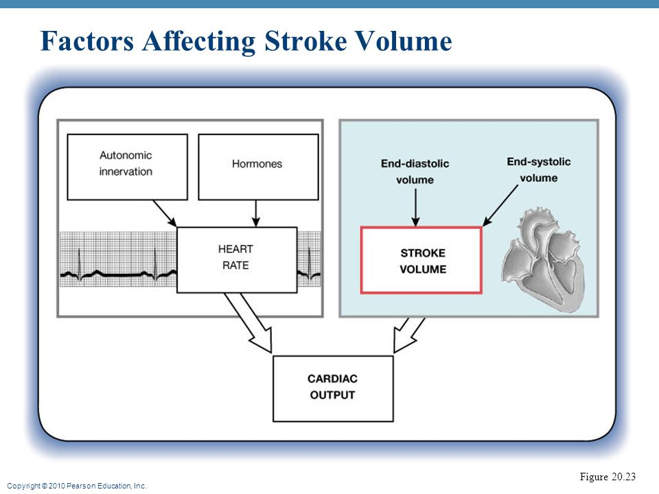 how to find stroke volume