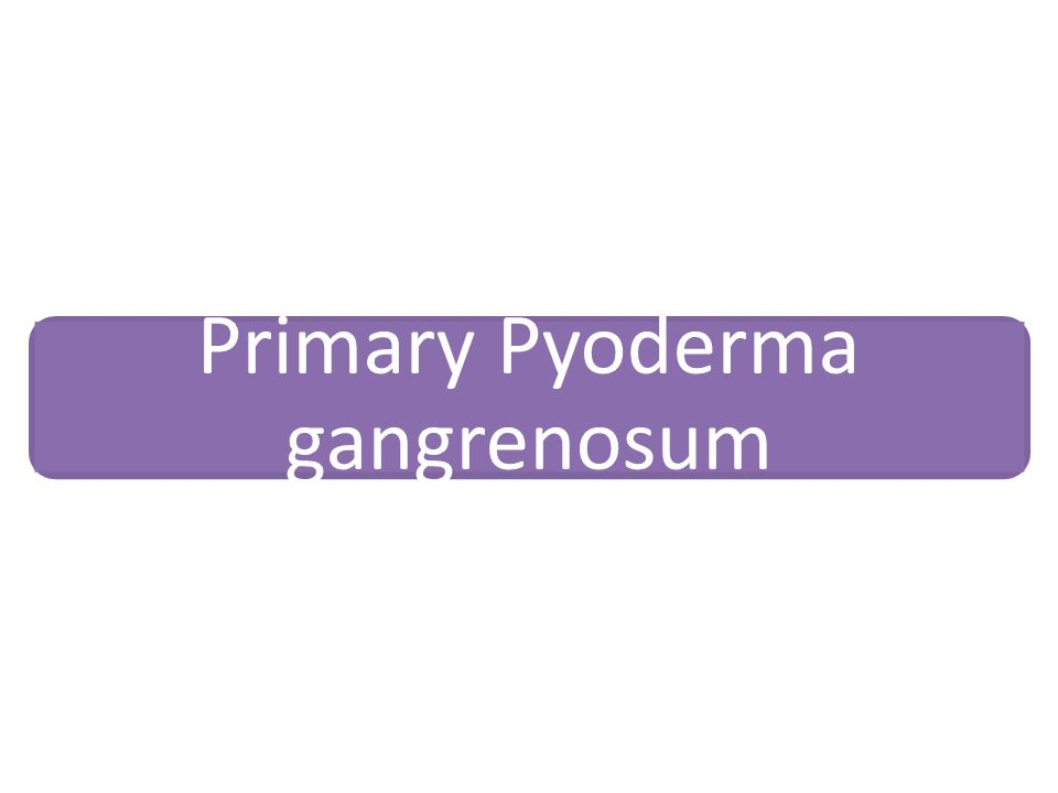 Primary Pyoderma gangrenosum