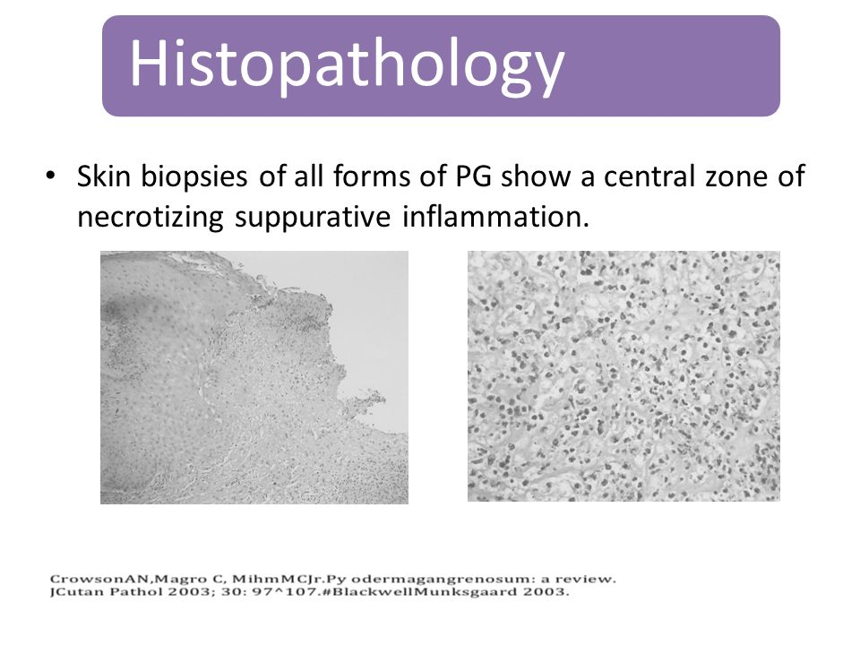Histopathology Skin biopsies of all forms of PG show a central zone of necrotizing suppurative inflammation.
