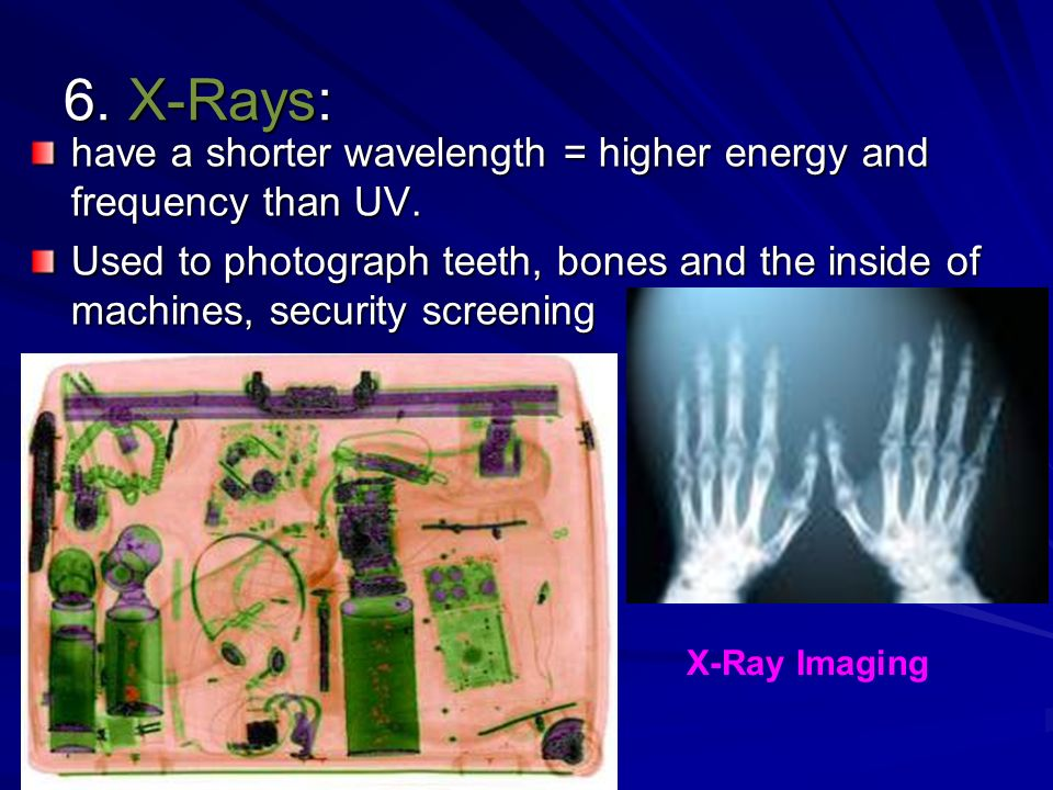 6. X-Rays: have a shorter wavelength = higher energy and frequency than UV.