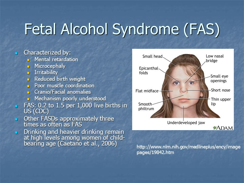 an analysis of the effects of fetal alcohol syndrome in new born children Historical reports indicate that the observation of an adverse effect on the fetus of chronic maternal alcoholism is not new three additional cases of the fetal alcohol syndrome have been recognised in two newborn infants and a 7-month-old baby the immutable nature of the prenatal-onset growth deficiency was further confirmed.