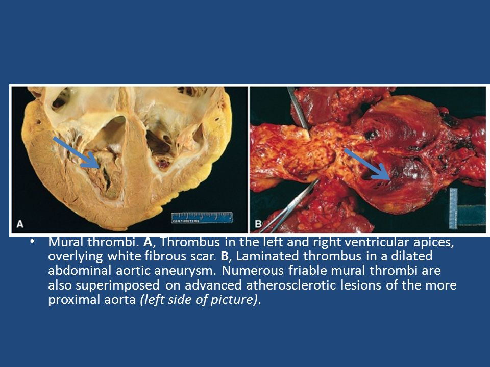 Hemostasis and thrombosis ppt video online download for Aortic aneurysm with mural thrombus