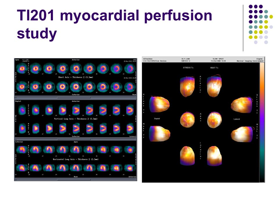 Myocardial Perfusion Imaging Test - YouTube