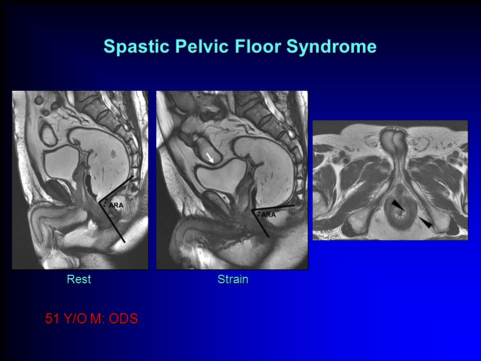 Spastic Pelvic Floor Syndrome