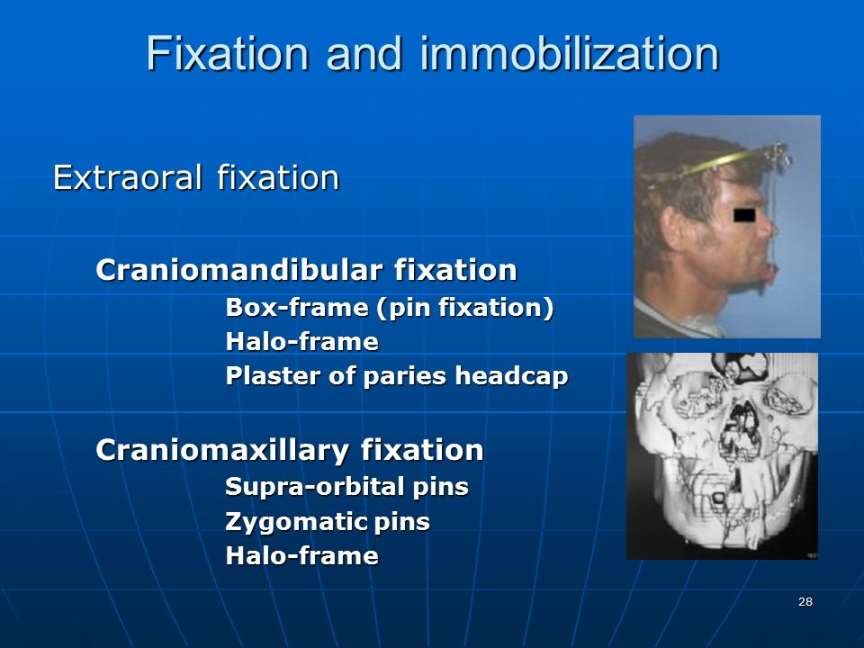 fixation and fixatives This ihc fixation protocol provides detailed descriptions of paraformaldehyde, ethanol, methanol and acetone fixation methods, as well as perfusion fixation.