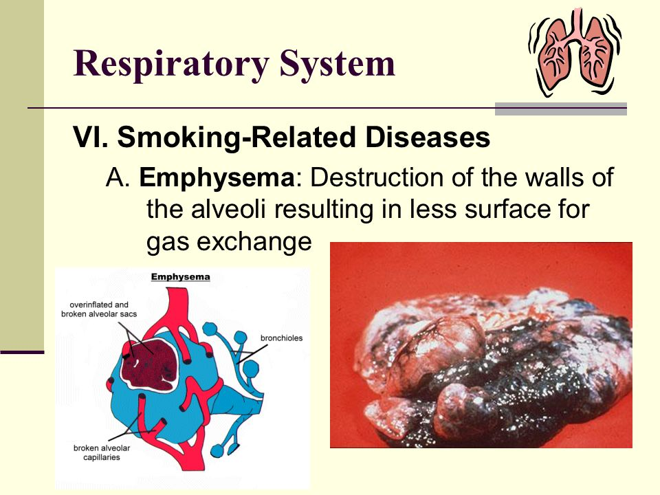 Respiratory System VI. Smoking-Related Diseases