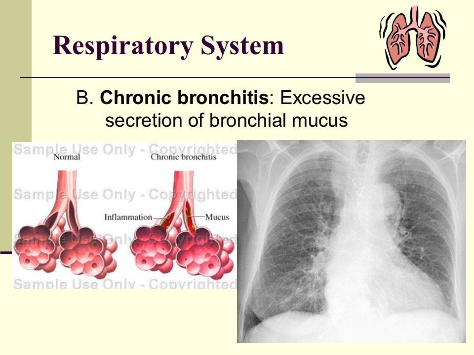 Respiratory System B. Chronic bronchitis: Excessive secretion of bronchial mucus