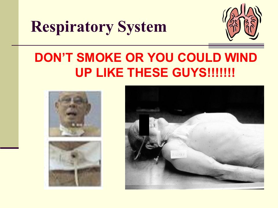 DON'T SMOKE OR YOU COULD WIND UP LIKE THESE GUYS!!!!!!!