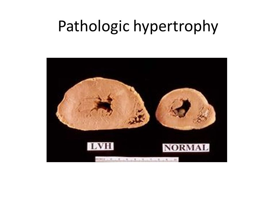 Pathologic hypertrophy