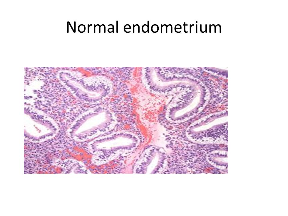 Normal endometrium