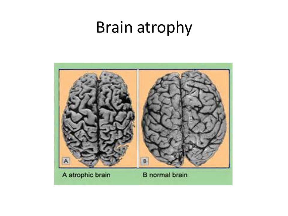 Brain atrophy