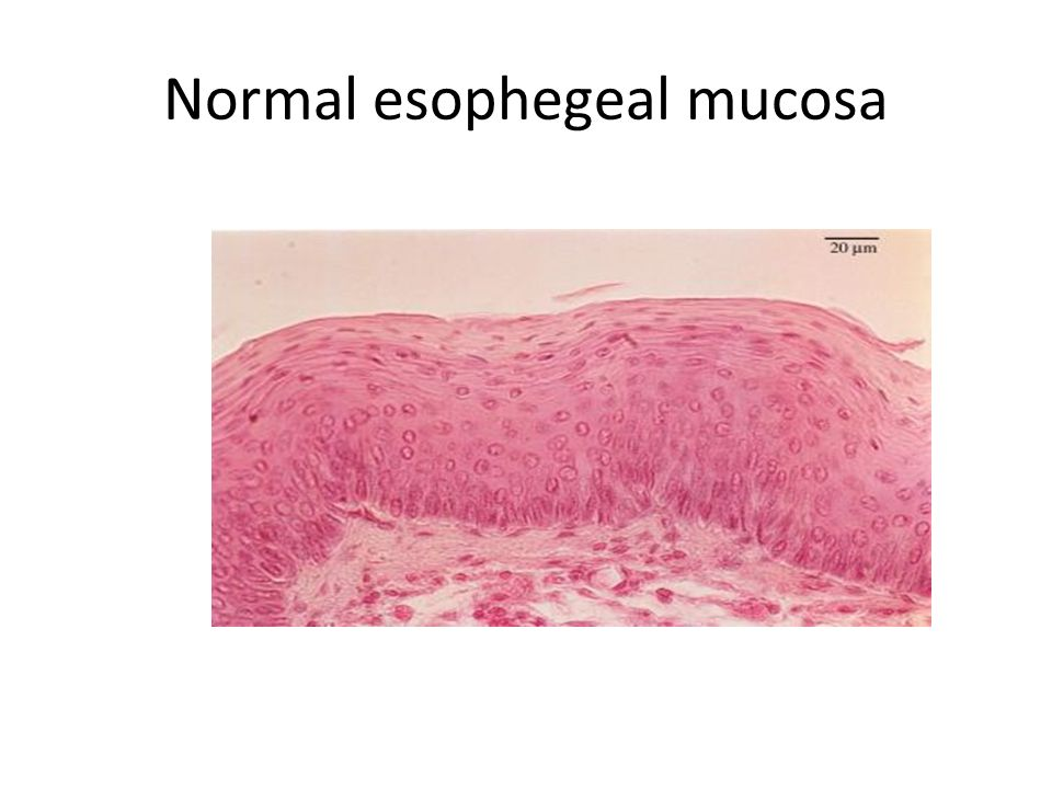 Normal esophegeal mucosa