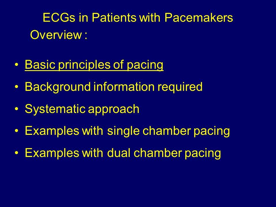basic principles of pacing