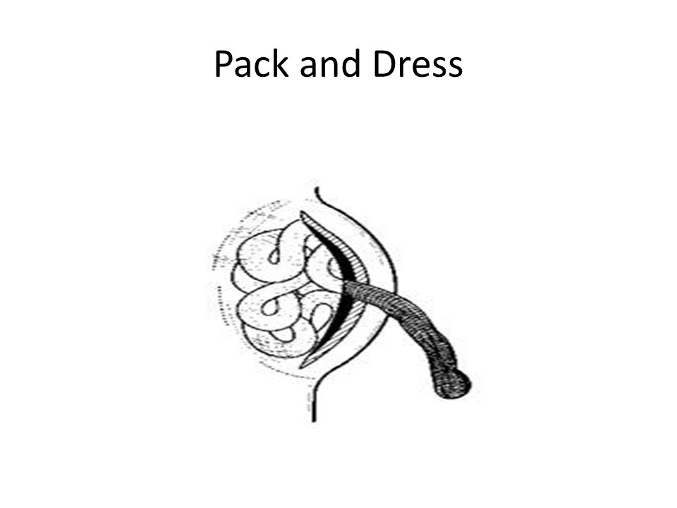 Pack and Dress