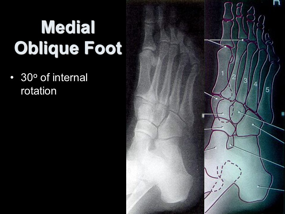 medial ankle projection Medial ankle stability is provided by the strong deltoid ligament projection is an anteroposterior view obtained with the leg internally rotated 15 to.