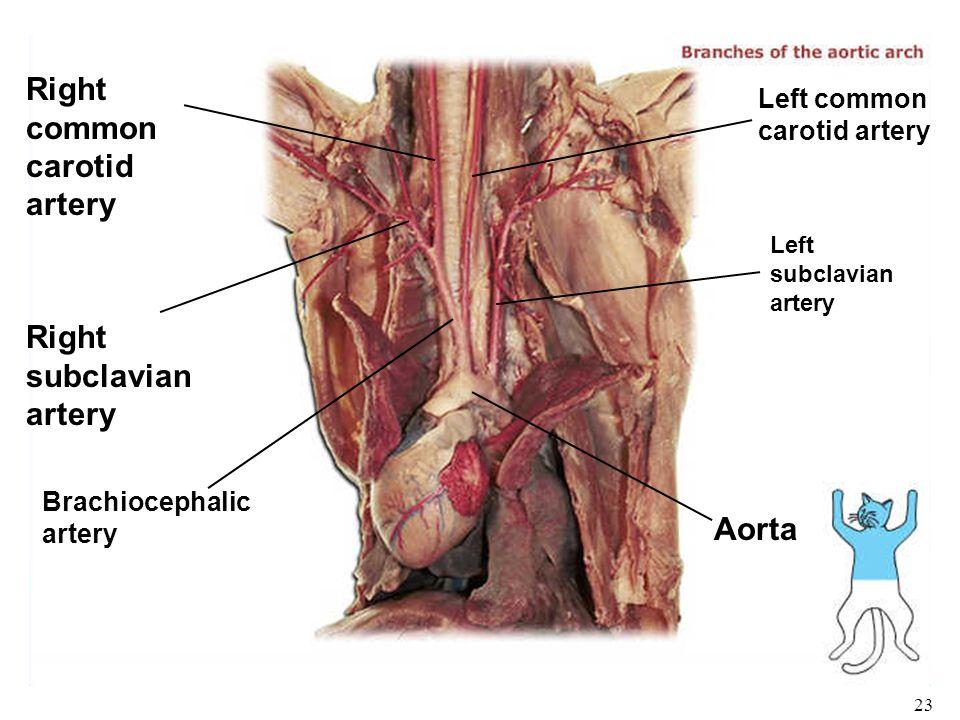 Enchanting Carotid Artery Anatomy Ppt Ideas - Human Anatomy Images ...