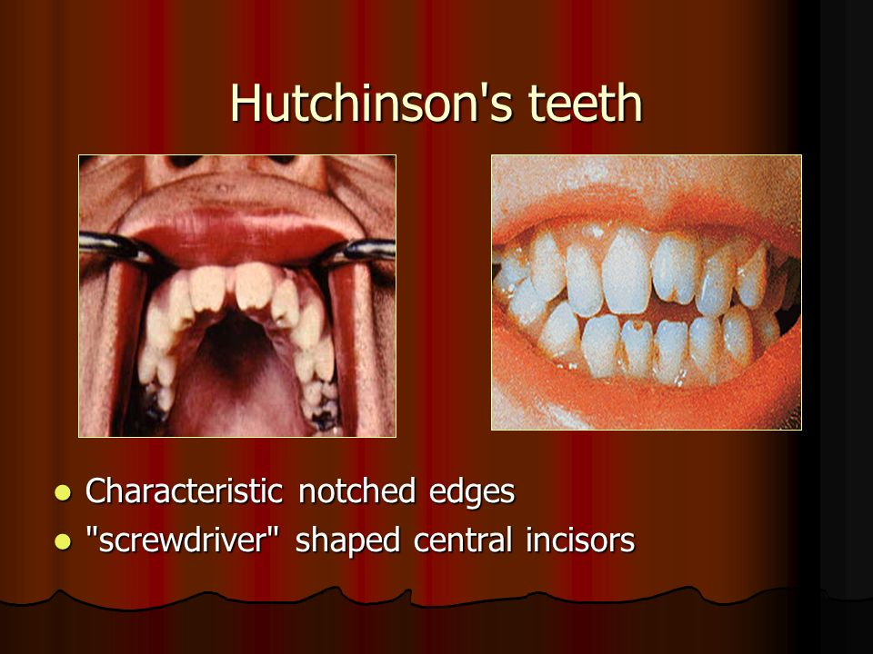 Hutchinsons teeth