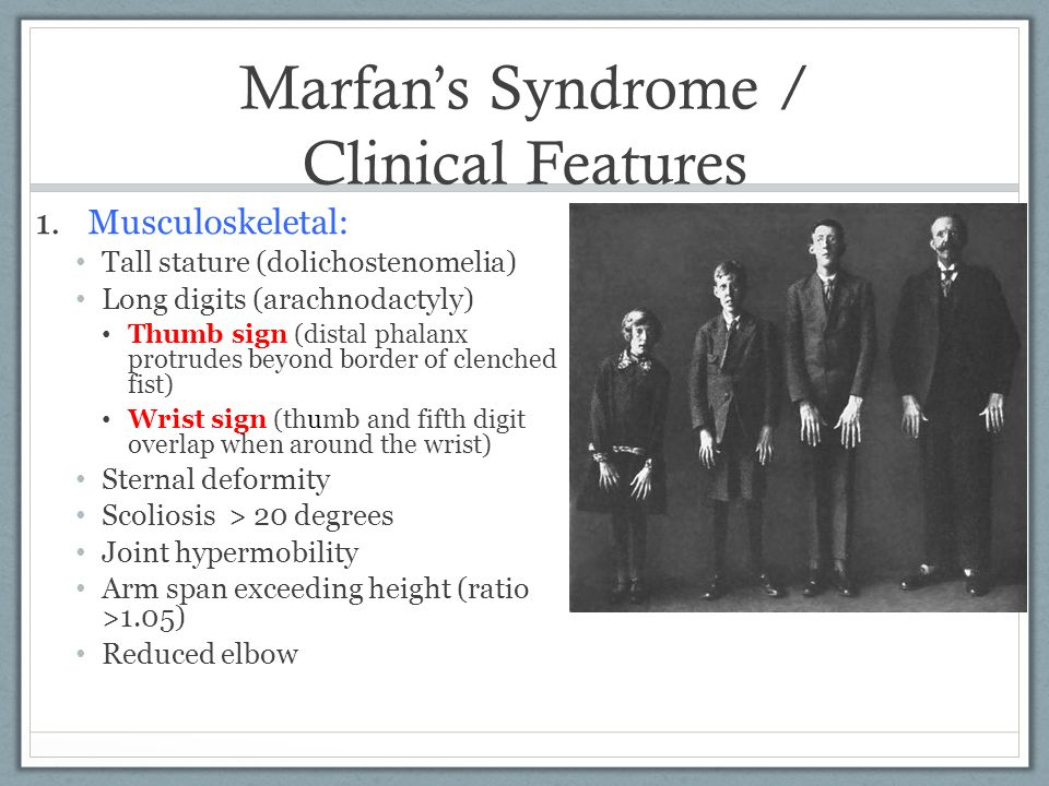The clinical description of the marfan syndrome