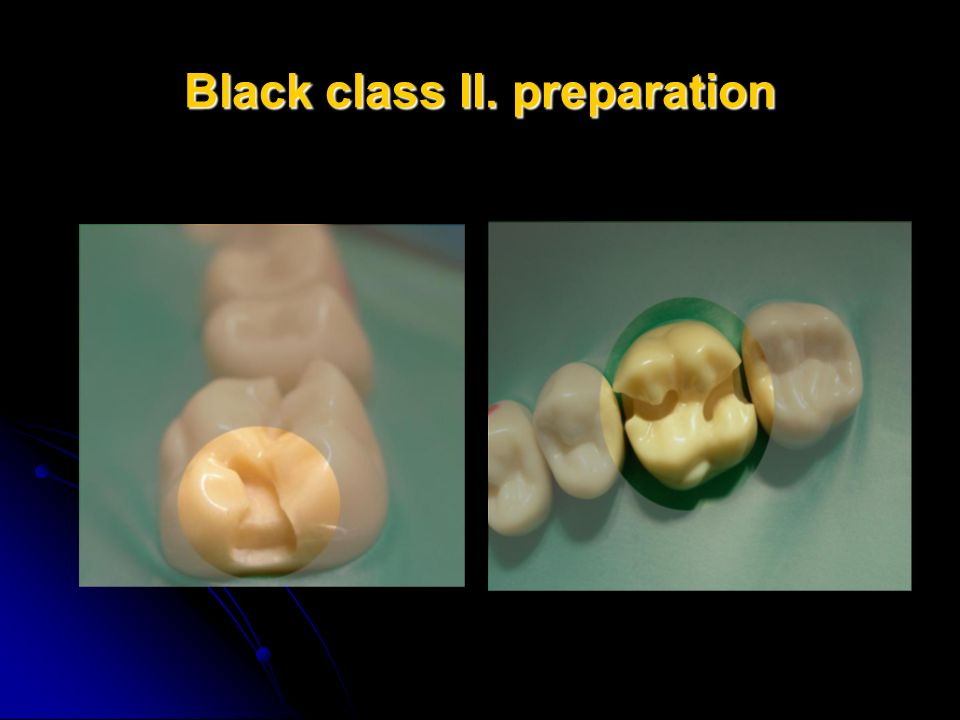 Black class II. preparation