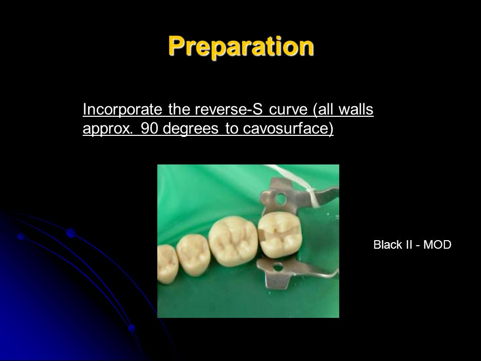 Preparation Incorporate the reverse-S curve (all walls approx.