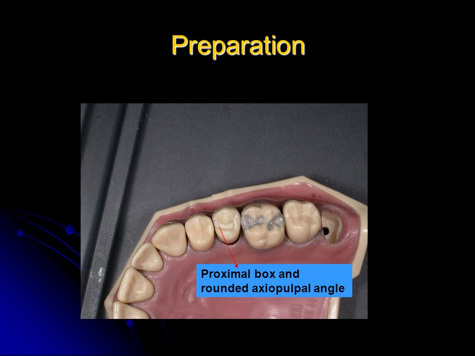 Preparation Proximal box and rounded axiopulpal angle