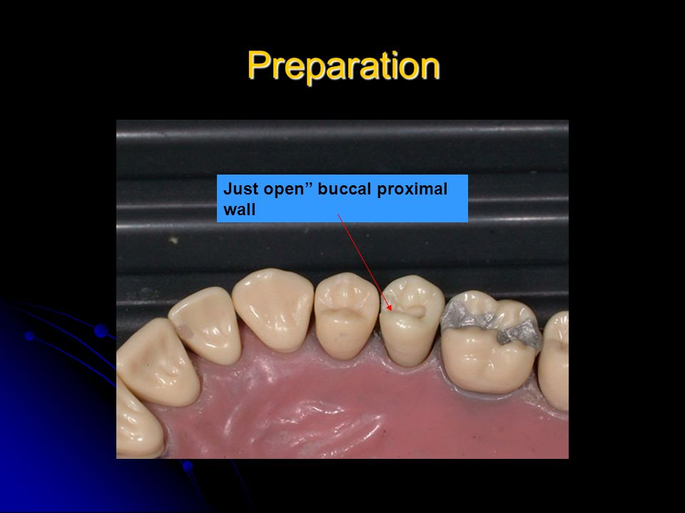 Preparation Just open buccal proximal wall