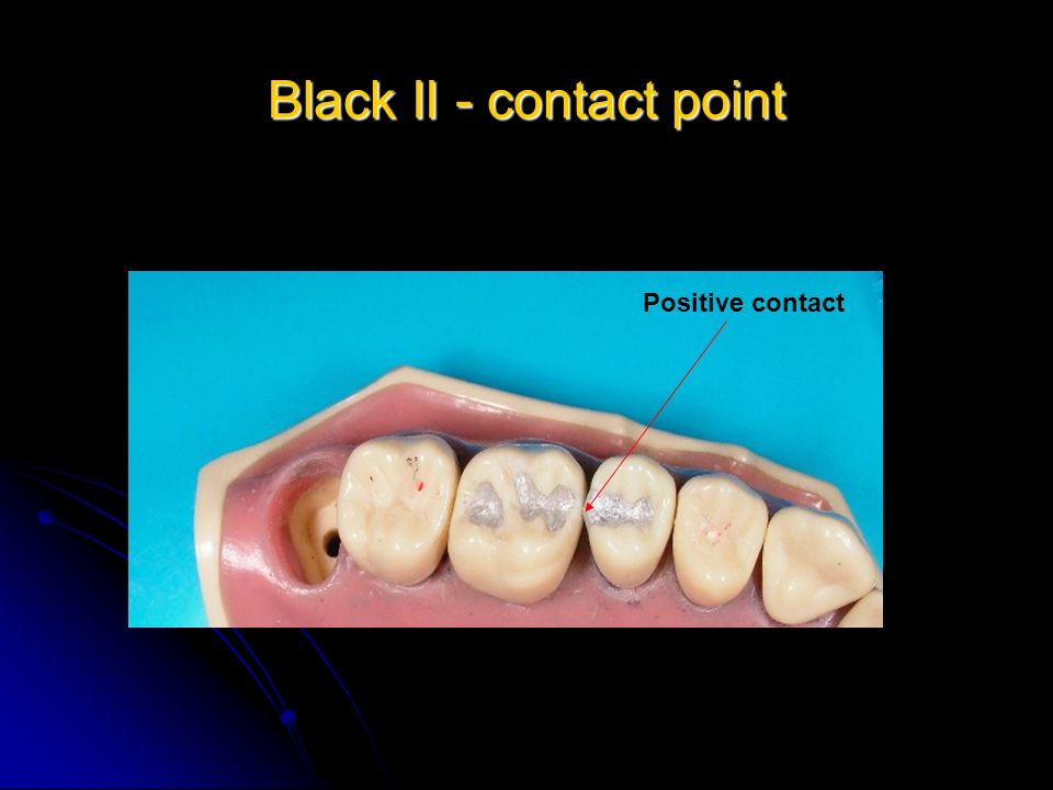 Black II - contact point