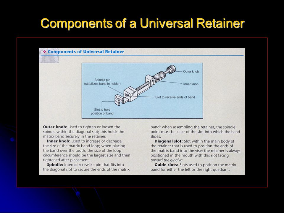 Components of a Universal Retainer