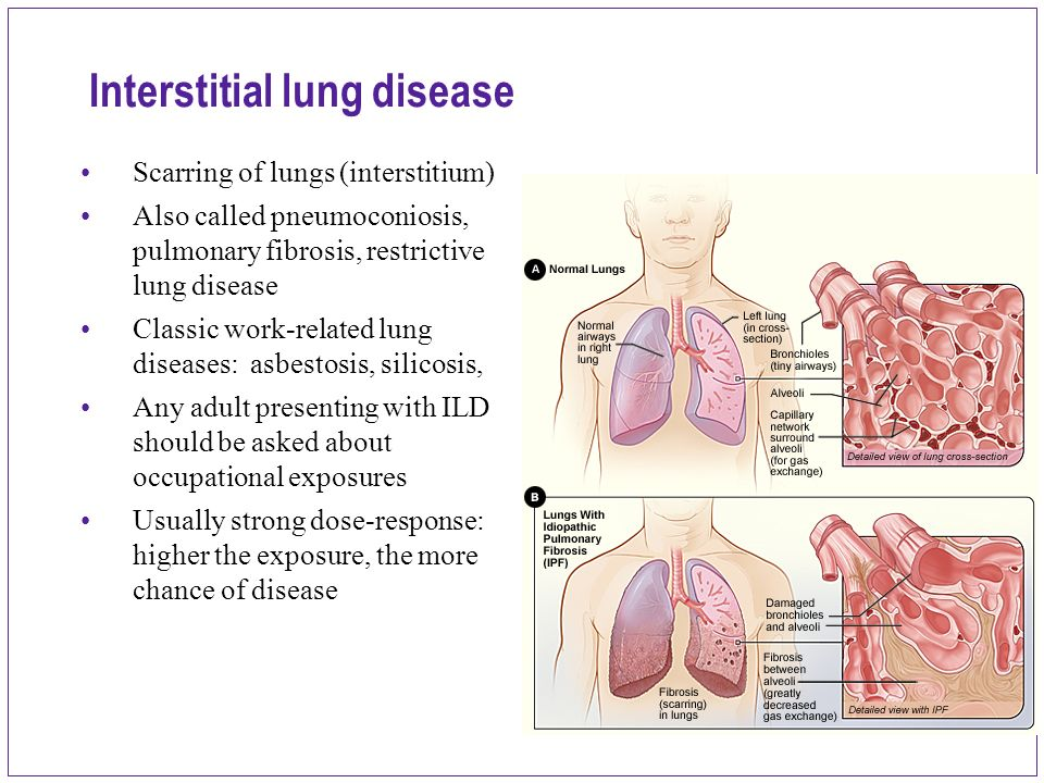 Lung disease for adult