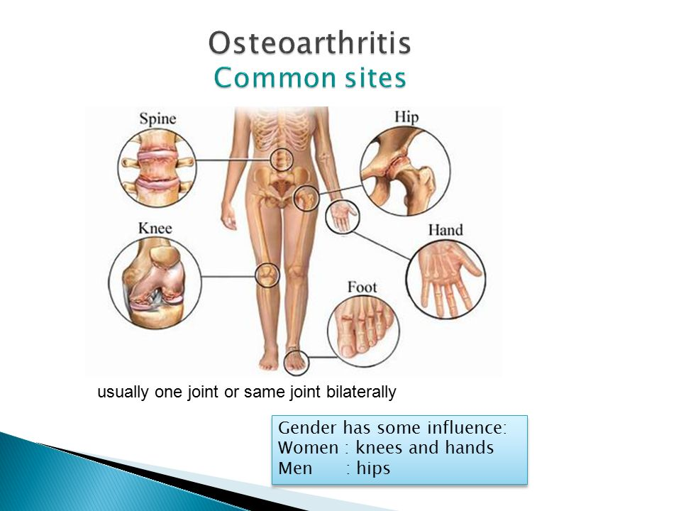 Osteoarthritis Common sites