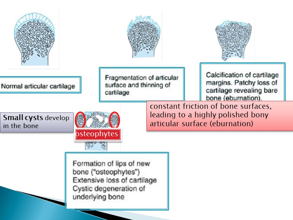 constant friction of bone surfaces, leading to a highly polished bony articular surface (eburnation)