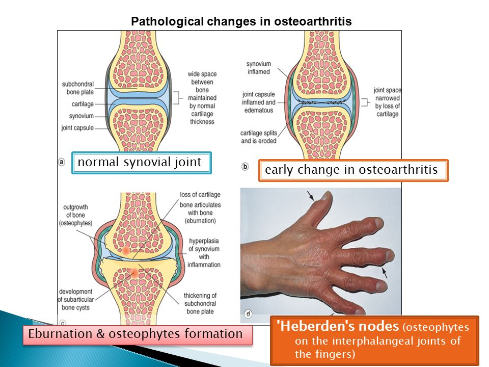 Pathological changes in osteoarthritis