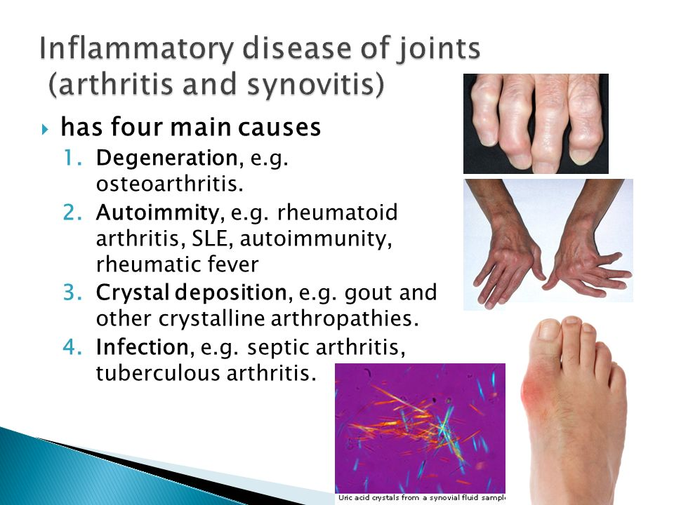 Inflammatory disease of joints (arthritis and synovitis)