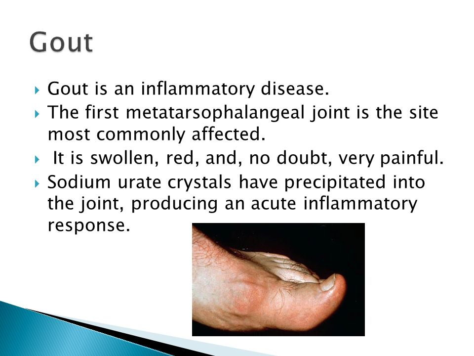 Gout Gout is an inflammatory disease.