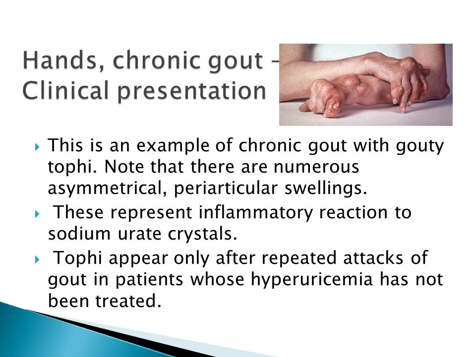 Hands, chronic gout - Clinical presentation