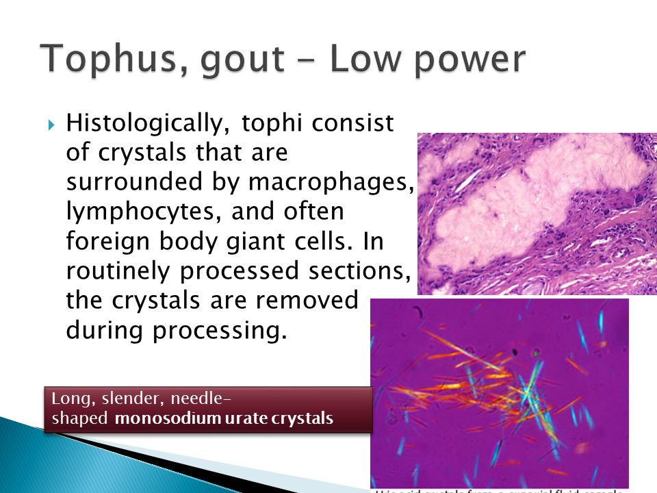 Tophus, gout - Low power