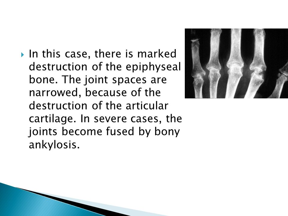 In this case, there is marked destruction of the epiphyseal bone