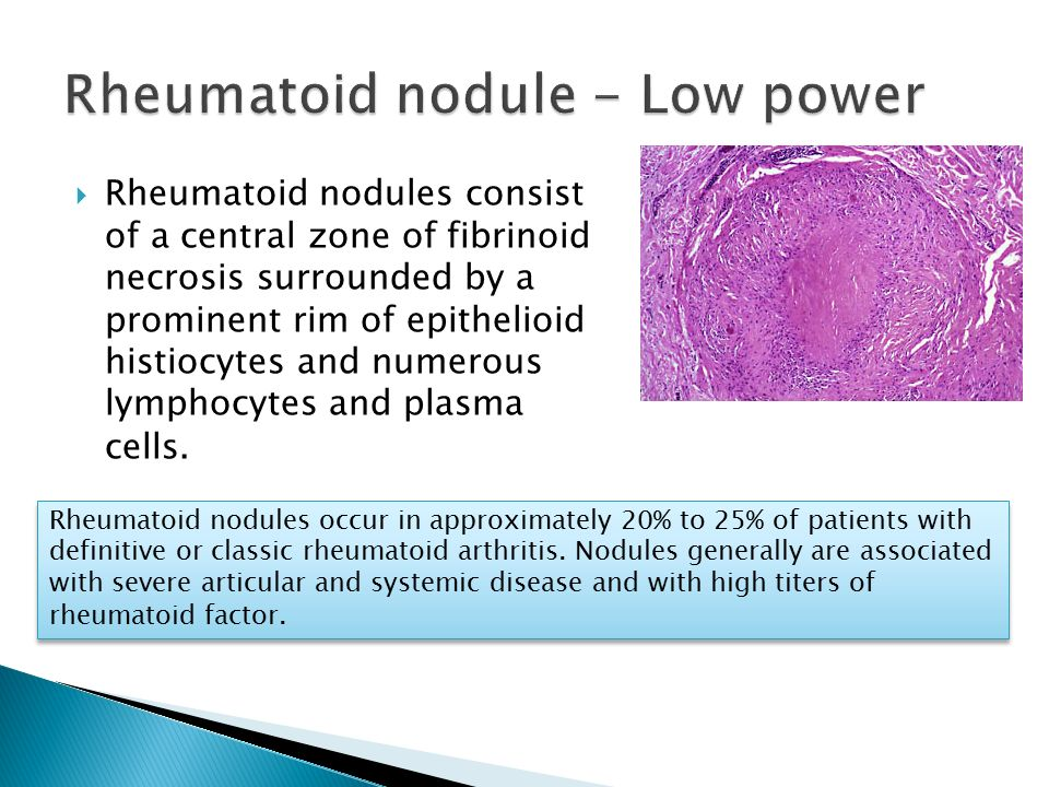 Rheumatoid nodule - Low power