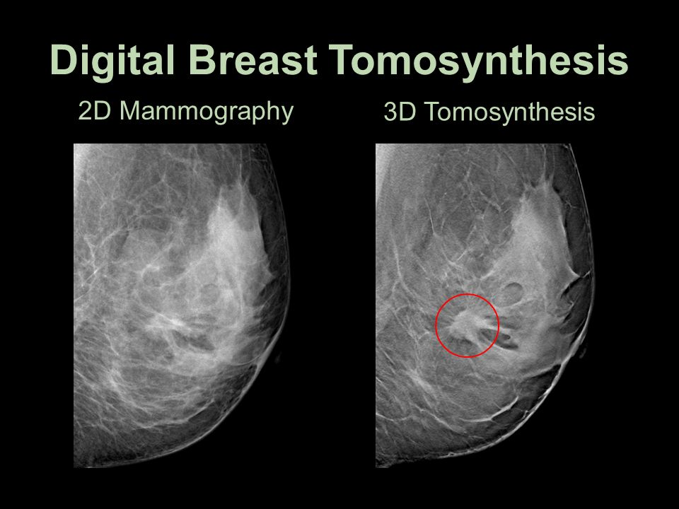 Digital mammography and tomosynthesis market outlook