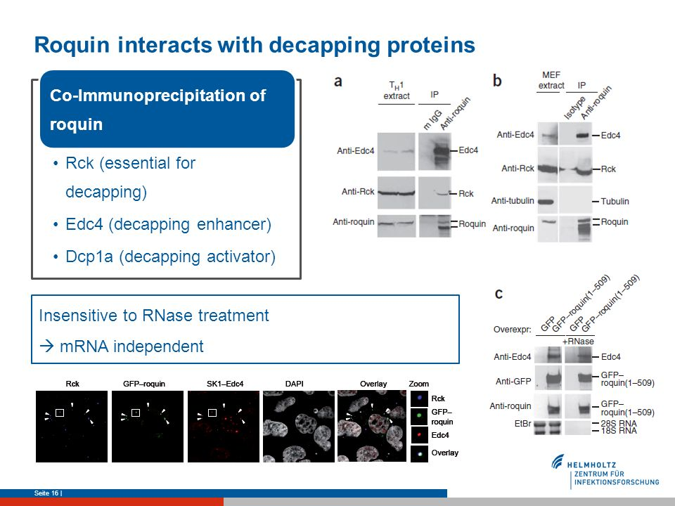 Roquin interacts with decapping proteins