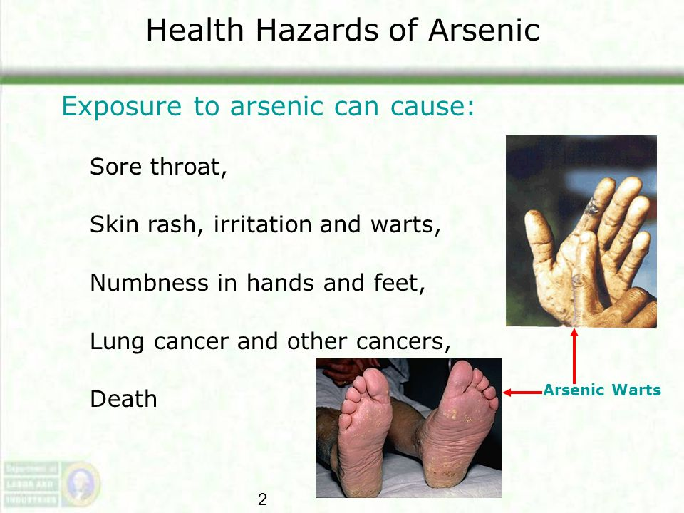 Health Hazards of Arsenic