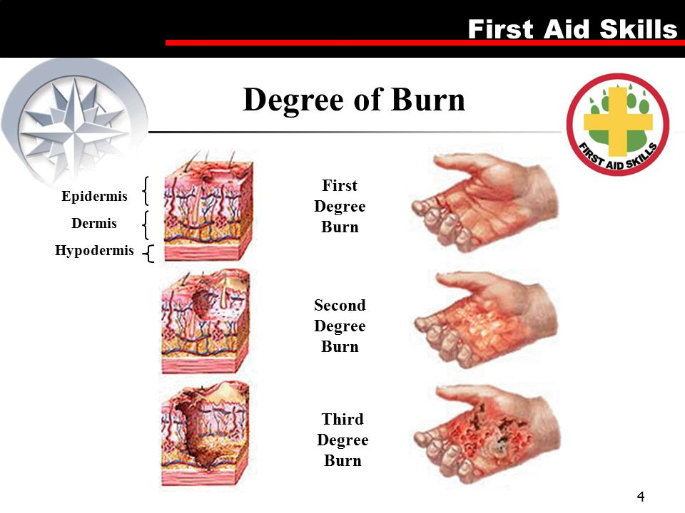 burn and degree burns Incase of second-degree burns, the affected area becomes wet and shiny, as there is fluid discharge from the burn site moreover, the site of the burn wound becomes reddish in color, swollen and is.