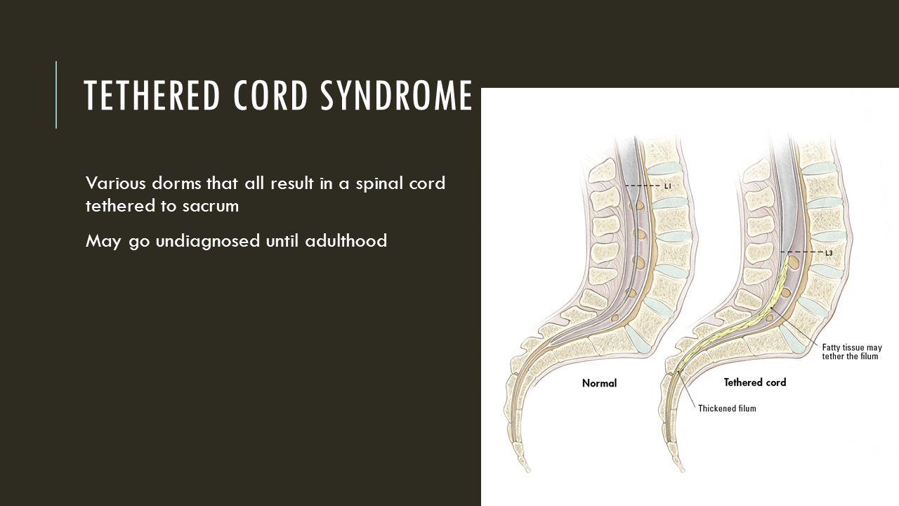 Tethered Spinal Cord Release