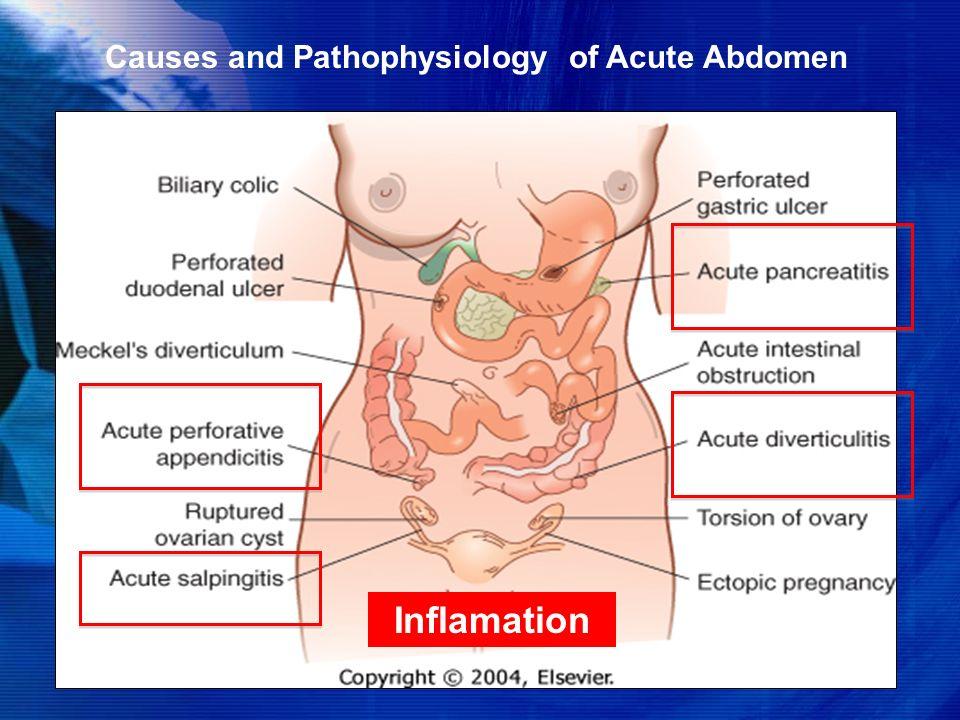 acute abdomen ppt presentation download
