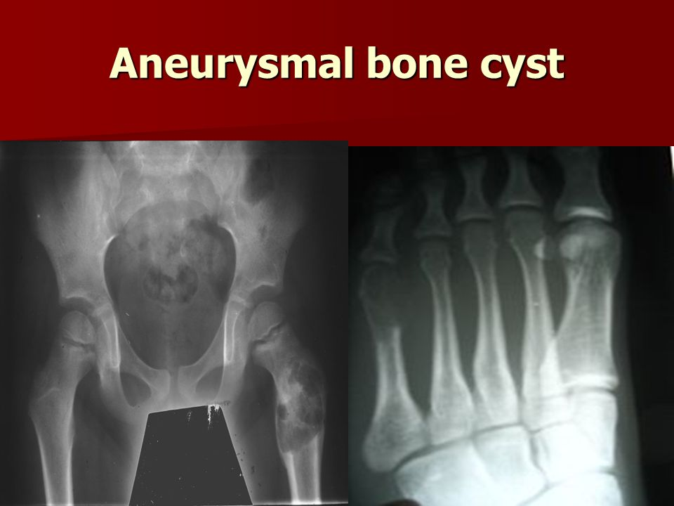 Bone tumors. - ppt video online download