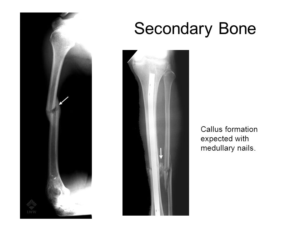 session vii bone healing - ppt download, Muscles