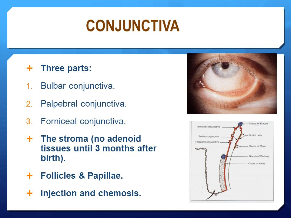 Bulbar Conjunctiva Diagram - 2018 images & pictures - Click Here For ...
