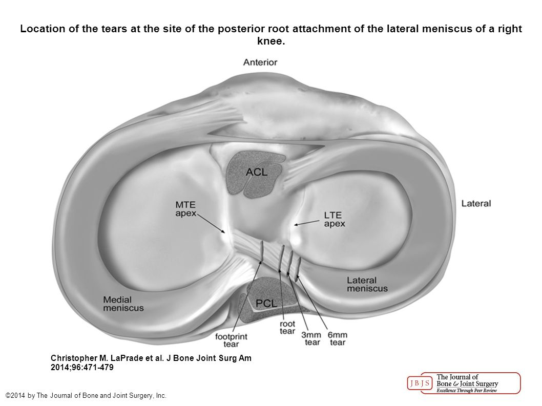 Altered tibiofemoral contact mechanics due to lateral meniscus location of the tears at the site of the posterior root attachment of the lateral meniscus pooptronica
